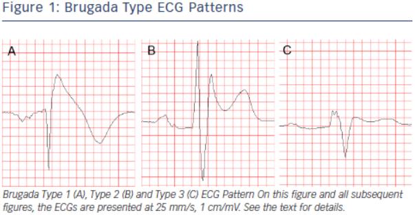 Simple Education Beauteous Ecg Pattern